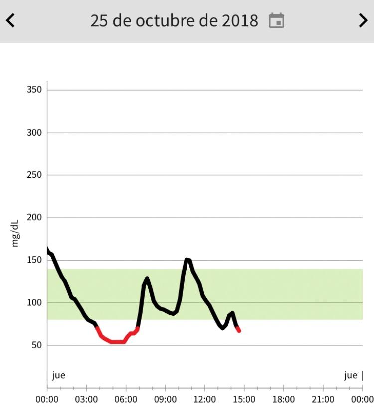 diabetes nivel de glucosa post comida